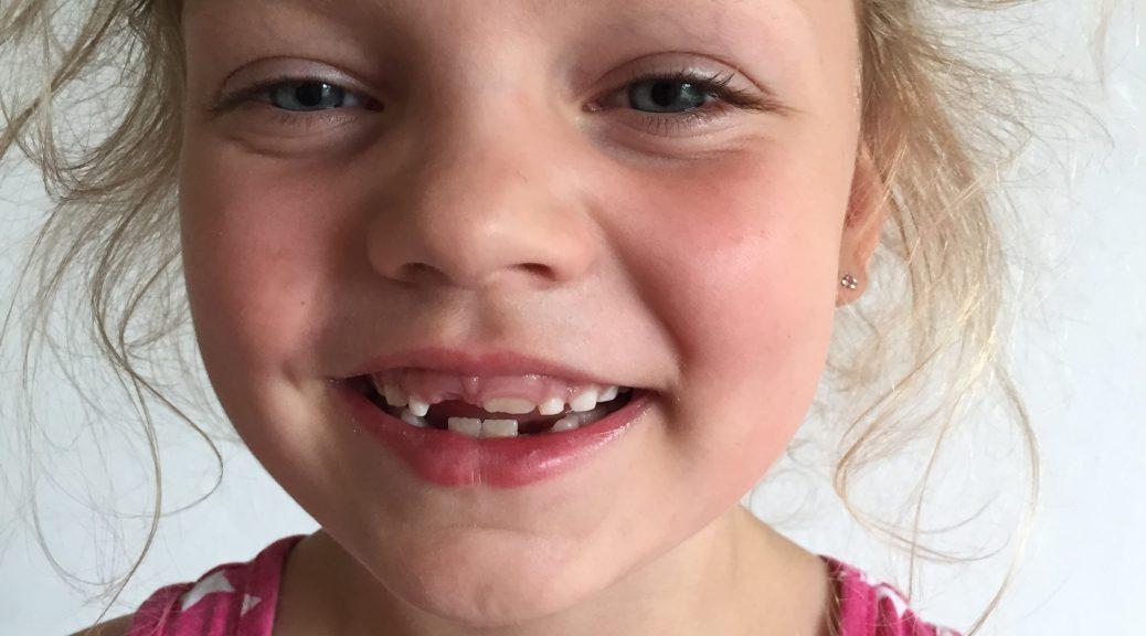 fietsenrekje tanden wisselen melktanden grote mensen tanden gebit kinderen tanden poetsen